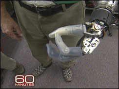 The Pentagon's Bionic Arm