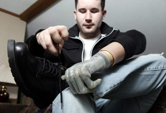 Tying shoes, gripping a beverage, steering a vehicle: These everyday tasks, and many more, are possible for people missing fingers or hands, thanks to i-Limb prosthetics. Here, 23-year-old Michael Nye of Middletown demonstrates enhanced dexterity using his high-tech, electronic hand.