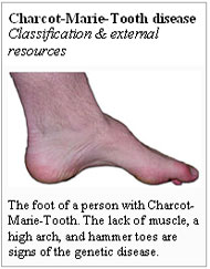 Charcot-Marie-Tooth Disease   Orthotic & Prosthetic Product ...